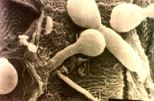 Candida pod mikroskopem